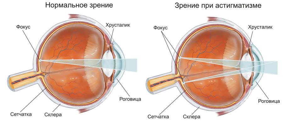 В астигматичном глазу лучи света, проходя через неправильной формы роговицу, образуют на сетчатке не одну фокусную точку, а несколько