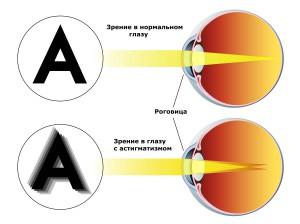 Это нарушение зрения можно распознать по признаку -  размытое, двоящееся изображение