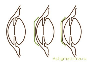 С помощью линз ночного ношения исправляется форма роговицы, чем достигается хорошее зрение днем