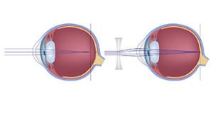При близорукости зрение корригируют очками со специальными вогнутыми стеклами
