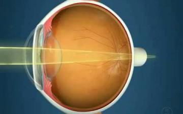 Миопия левый глаз и близорукость правый глаз